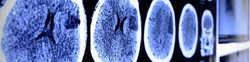 Common Brain Injuries in Accident Cases